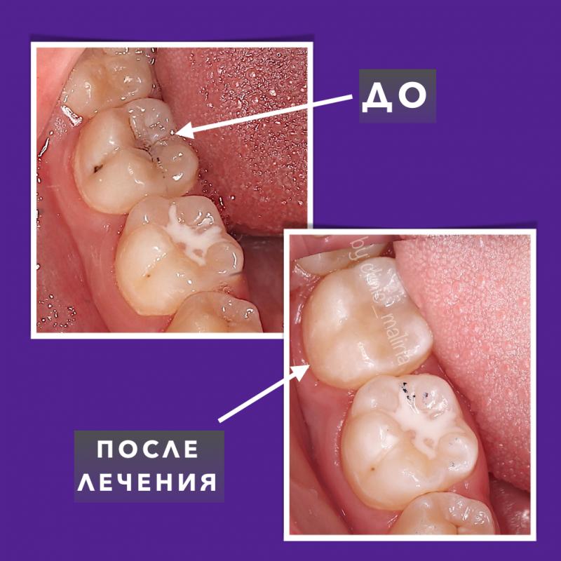 Подробнее: Как сэкономить на лечении зубов?