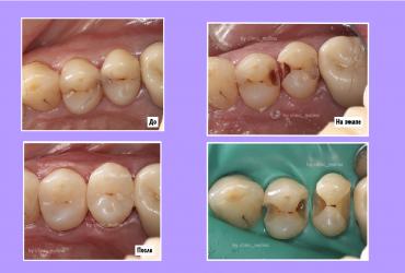 кариес пломба лечение зубов стоматология Cерпухов малина