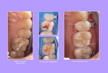 кариес пломба лечение зубов стоматология серпухов малина