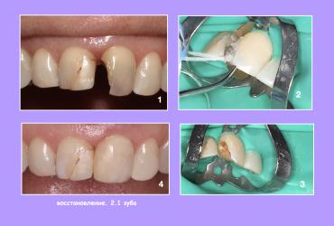 malina-serpukhov-plomba-lechenie-zubov-591C79BBF-F412-91F0-0FCE-0F2E07CBAC43.jpg