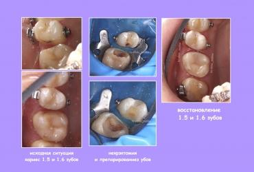 malina-serpukhov-plomba-lechenie-zubov63282B0F-3687-3471-1FD6-845E24337612.jpg