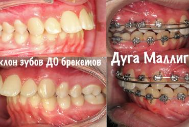 malligan-wire-mulligan-ortolajt-tarasova516F6F1E-93A1-E258-EEAC-9E2F7E643CB3.png