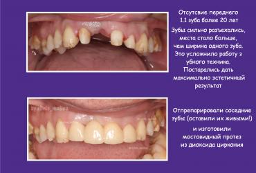 стоматология серпухов ортопед коронки циркониевые коронки