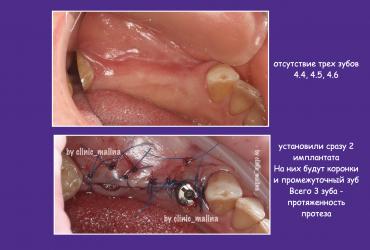 most-na-implantatakh-implanty-tsirkonij-ortoped-stomatologiya-zuby-serpukhov1F80C801-F725-5B3B-8375-DC718866E0E9.png