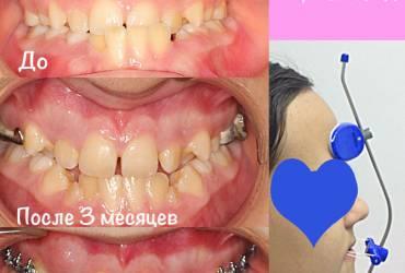 лицевая маска, ортодонтия