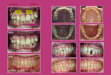 ortodont-serpukhov-brekety-chekhov-podolsk-rovnye-zubyBE32E3BD-57AC-9481-0CC8-B62E5AE6F5EF.png
