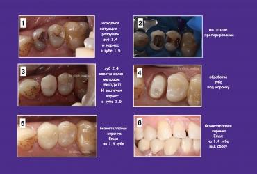 serpukhov-implantatsiya-koronka345D3C67-49C8-98B3-6466-AADCE946BCAA.jpg